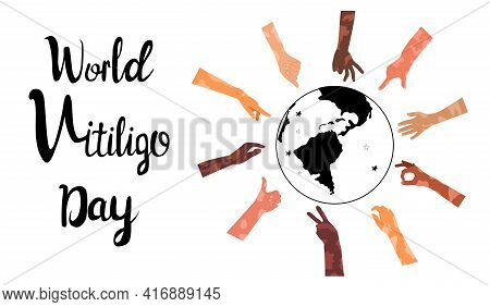 World Vitiligo Day Poster With Lettering.hands Different Ethnicities In Various Gestures With Skin D