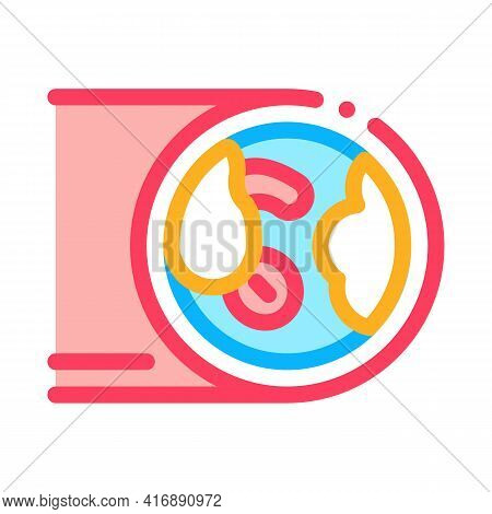 Artery With Atherosclerosis Color Icon Vector. Artery With Atherosclerosis Sign. Isolated Symbol Ill