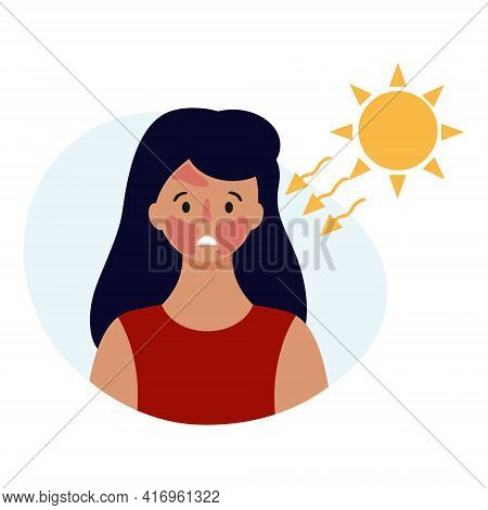 A Sad Girl With A Sunburn On Her Face. Beauty And Health Of The Skin. Vector Illustration In A Flat