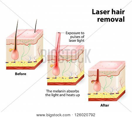 The laser emits an invisible light which penetrates the skin without damaging it. At the hair follicle the laser light absorbed by the pigments is converted into heat. This heat will damage the follicle.
