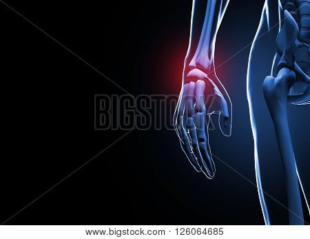 3d render Human hand and wrist pain caused by arthritis and carpal tunnel syndrome injury in the hand joint as an anatomy with skeleton and highlighted injured body part as a medical and health care. poster