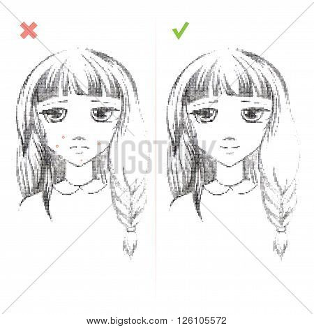 Freehand drawing medical icon Acne.Teenage girl with a pimple on her cheek. Acne vulgaris. Acne of a 14-year-old during puberty. Rubella. Rash on face. On white background. Eps 8