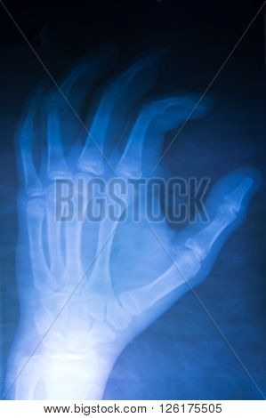 film x-ray both hand AP : show normal human's hands on black background (isolated)