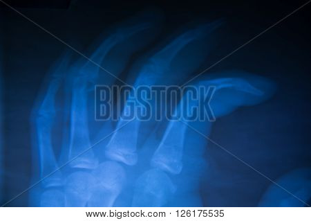 film x-ray  show normal human's hands on black background (isolated)