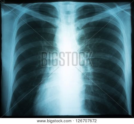 X-ray of chest / Many others X-ray images in my portfolio.