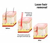 The laser emits an invisible light which penetrates the skin without damaging it. At the hair follicle the laser light absorbed by the pigments is converted into heat. This heat will damage the follicle. poster