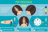 Platelet rich plasma injection. PRP therapy process. Male hair loss treatment infographics. Injection. Meso therapy. Hair growth stimulatio. Vector illustration. poster