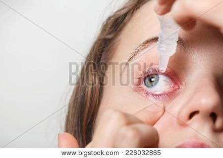 Female Puts Eye Drop In Her Inflamated Red Eye, Suffers From Conjuctivitis, Isolated On White. Woman