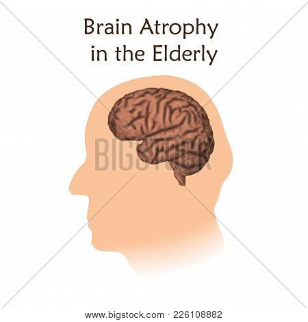 Brain Atrophy In The Elderly. White Background. Silhouette Of Head