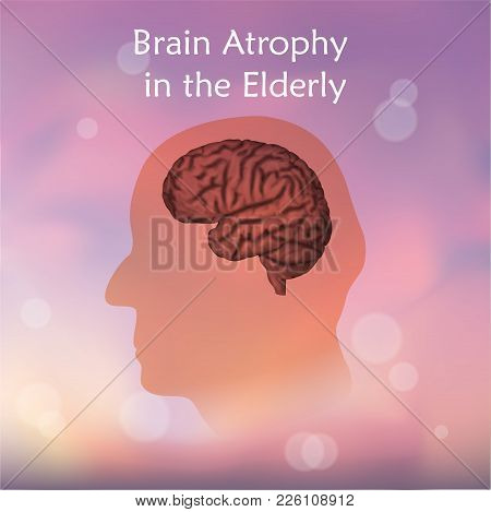 Brain Atrophy In The Elderly. Blurred Pink Background. Silhouette Of Head