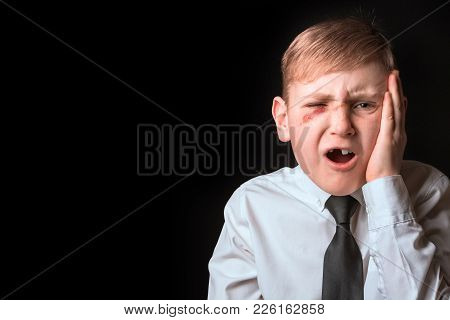 Portrait Of A School Boy Without One Tooth And Wound On His Face. Concept Of Adolescent Violence.