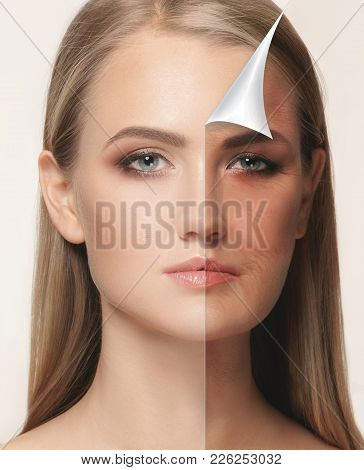 The Portrait Of Beautiful Woman With Problem And Clean Skin, Aging And Youth Concept, Beauty Treatme