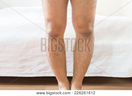 Asian Man Leg Bandy-legged Shape Of The Legs,close Up