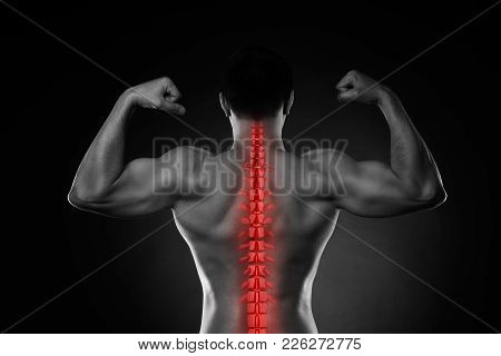 Pain In The Spine, A Man With Backache, Injury In The Human Back, Black And White Photo With Highlig