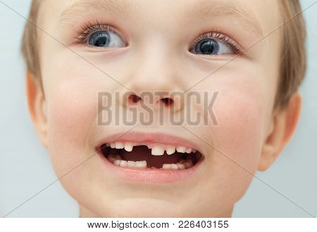 A Small Child Shows Gaps In The Teeth