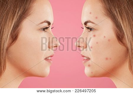 Sideways Shot Of Two Female`s Faces: One With Healthy Pure Skin And Other With Many Pimples, Has Acn