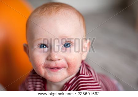 Infant In Manifestations Of Allergy On The Face