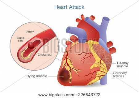 Illustration Of Arterial Thrombosis Is A Blood Clot That Develops To Heart Attack. Causes And Risk F