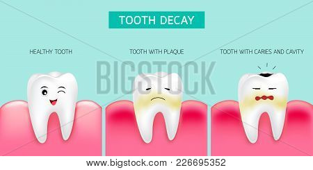 Step Of Tooth Decay Formation. Healthy Tooth, Forming Dental Plaque And Finally Caries And Cavity. C
