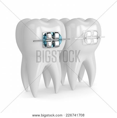 3d Render Of Teeth With Ceramic And Metal Braces Isolated Over White Background. The Concept Of Comp