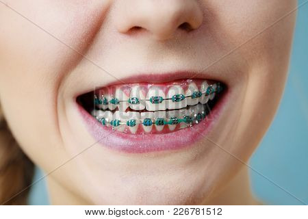 Dentist And Orthodontist Concept. Closeup Of Woman Showing Teeth With Blue Braces, Making Funny Sill