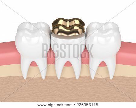 3d Render Of Teeth With Dental Golden Onlay Filling In Gums