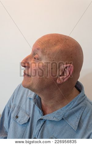 Older Man Head In Profile, Bald, Alopecia, Chemotherapy, Cancer, Isolated On White, Vertical Aspect