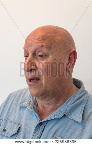 Older Man, Bald, Alopecia, Chemotherapy, Cancer, Isolated On White, Vertical Aspect