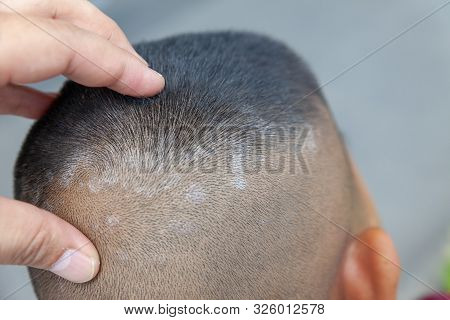 Close-up Skin Head , Scalp, Photos Of Dermatitis And Eczema, Skin Problems, Dermatology