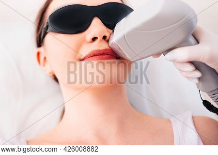 Young Beautiful Woman Doing Laser Hair Removal Of The Upper Lip Concept. Body Care. Beauty. Laser Ha