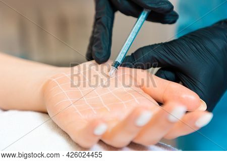Protection From Perspiring, Hyperhidrosis. Doctor Makes Injections Of Botulinum Toxin On The Client'