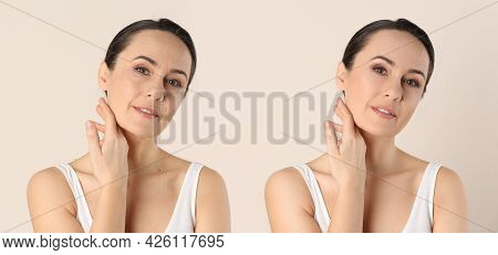 Photo Before And After Retouch, Collage. Portrait Of Beautiful Mature Woman On Beige Background, Ban