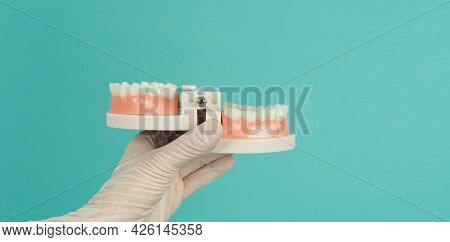 Orthodontic Model Of Teeth In Hand That Wearing Medical Glove On Green Mint Or Tiffany Blue Backgrou