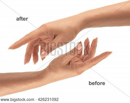 Beautiful Woman Hands. Female Hands Before And After Applying Cream, Lotion. Spa And Manicure Concep
