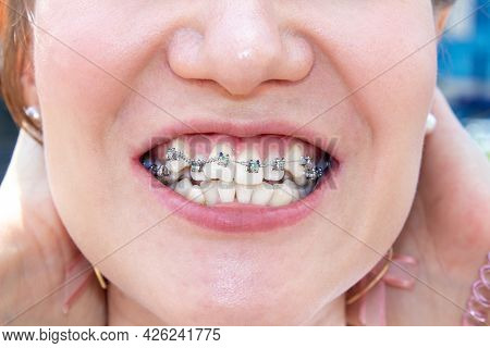 Curved Female Teeth, After Installing Braces. Close-up Of The Teeth After Treatment At The Orthodont
