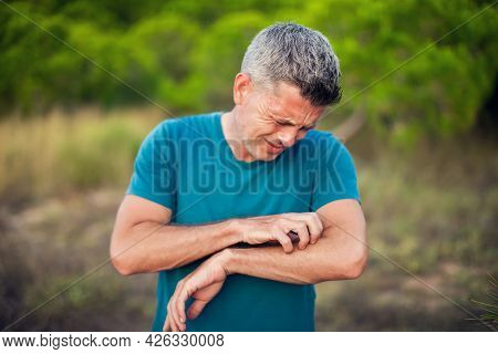 Allergy Or Mosquito Bite. Man Scratcing Arm Outdoor. Healthcare And Medicine Concept