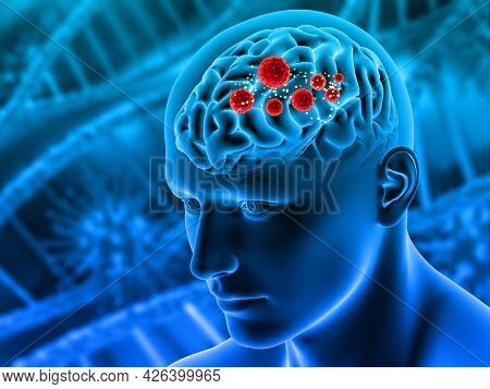 3D render of a medical figure with virus cells in brain