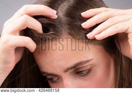 Sad Woman With Hair Loss Problem Worried About Hair Loss.