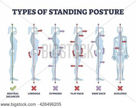 Types Of Standing Postures And Medical Back Pathology Set Outline Diagram. Educational Labeled Colle