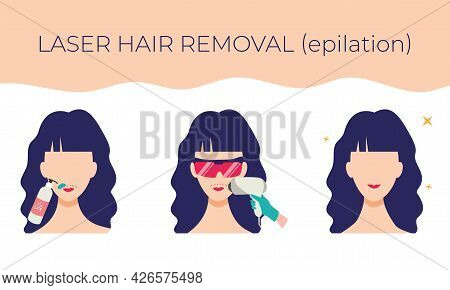 Laser Hair Removal On The Face. Stages Of The Procedure. Vector Illustration Of A Young Woman In Car