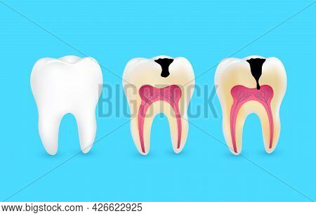 Healthy Tooth And Tooth Caries. Superficial Caries; Deep Caries; Enamel And Dentin Decay; Periodonti