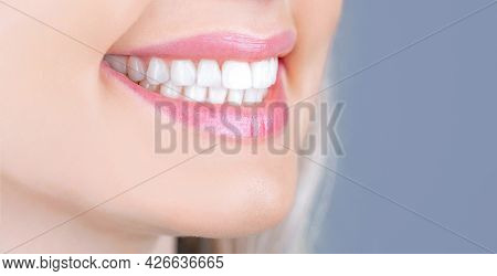 Dental Care. Dentistry Concept. Perfect Healthy Teeth. Closeup Shot Of Womans Toothy Smile. Perfect