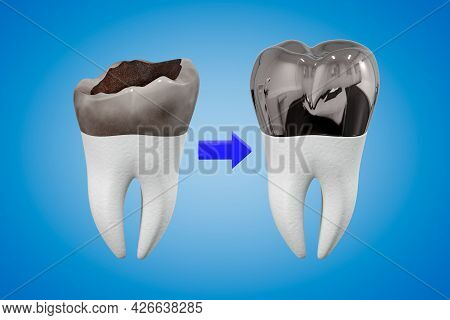 The Concept Of Prosthetics Of A Damaged Tooth With A Metal Crown. Carious Tooth And Dental Crown. De