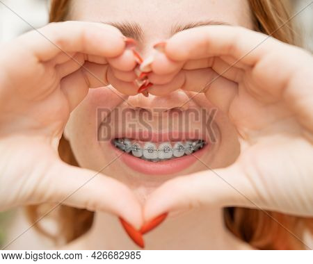 Close-up Portrait Of A Young Red-haired Woman With Braces On Her Teeth Holding Her Hands In The Shap