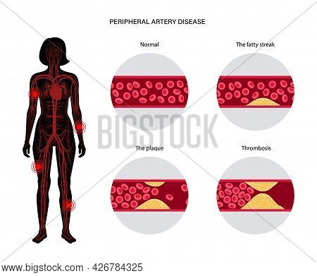 Peripheral Artery Disease. Ischemia In Legs And Hands. Cholesterol In Human Blood Vessel. Pad Concep
