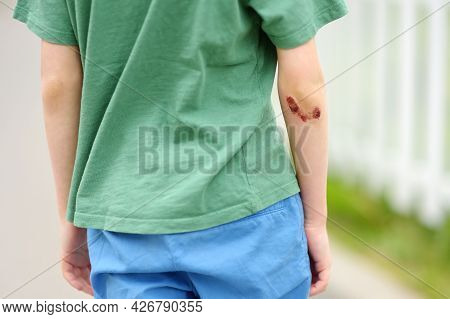 Cute Little Boy With Wound On His Elbow. Child Healthcare And Medicine Concept. First Aid For Kids A