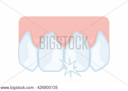 Upper Front Teeth, Incisors. Dentistry, Dental Care. Illustration For Study Guide Or Booklet