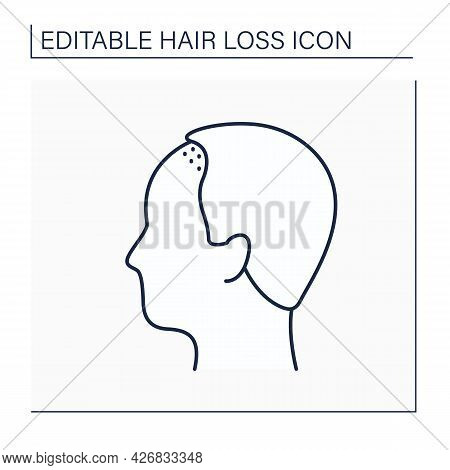 Hair Loss Line Icon. Man Loses Hair Above Upper Brow Crease. Male Pattern Baldness. Alopecia Concept