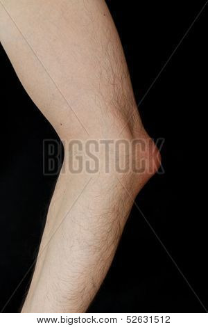 Olecranon bursitis, also known as student elbow, is a medical condition caused by the inflammation of the bursa located under the elbow Olecranon due to strong trauma or repetitive smaller traumas