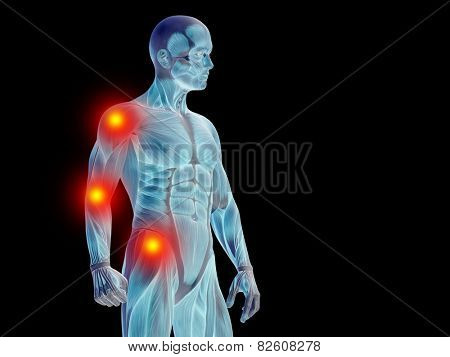 Conceptual 3D human man anatomy or health design, joint or articular pain, ache or injury on black background for medical, fitness, medicine, bone, care, hurt, osteoporosis, painful, arthritis or body poster
